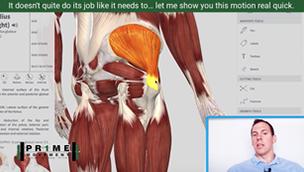 what is hip bursitis