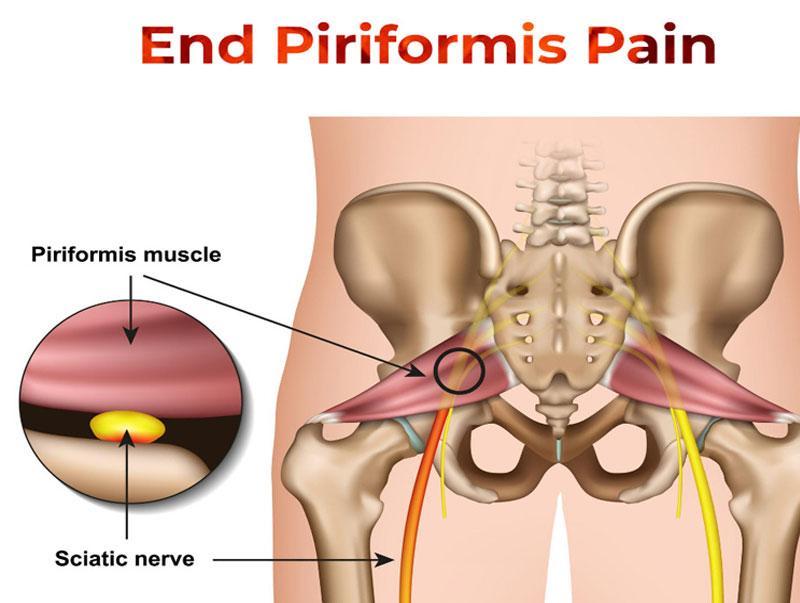 Piriformis-Pain